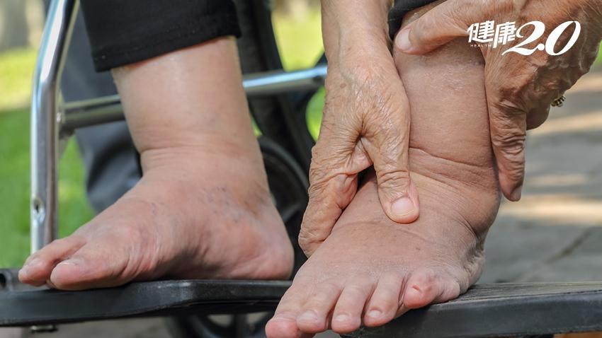 誤信保健食品險截肢 幸好這樣救才保住腳