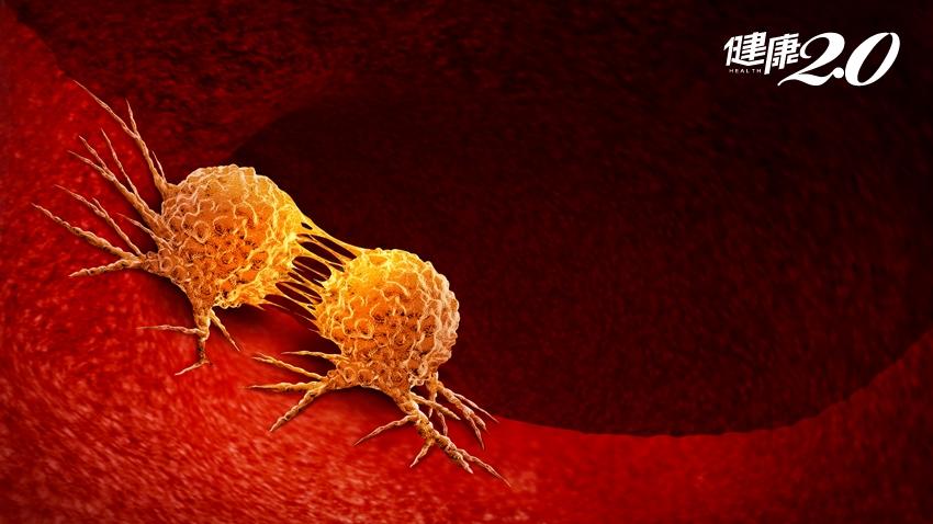 身體會發出10種癌症警訊!莫名發燒、傷口不癒……要警覺