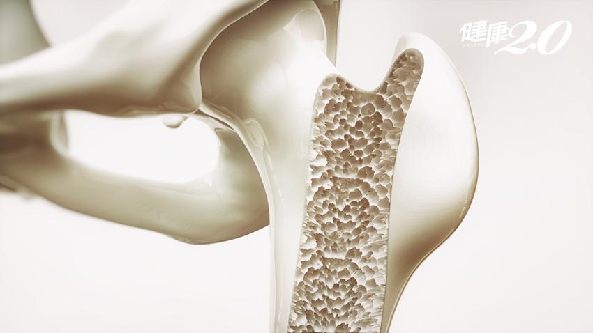 40歲骨鬆,原因不單純!「這個病」也會讓你骨質大流失