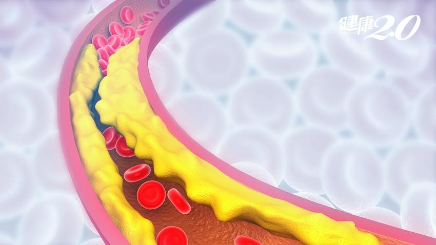 明明只檢查出「輕微血管斑塊」,為何心肌梗塞仍找上門?