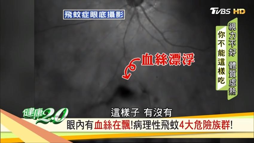 眼裡有血絲在飄?飛蚊症有失明風險,4大症狀快就醫!