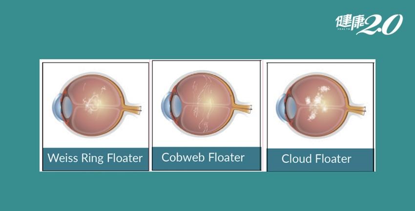 突然大量黑影遮眼以為快失明?新技術可治3種飛蚊症