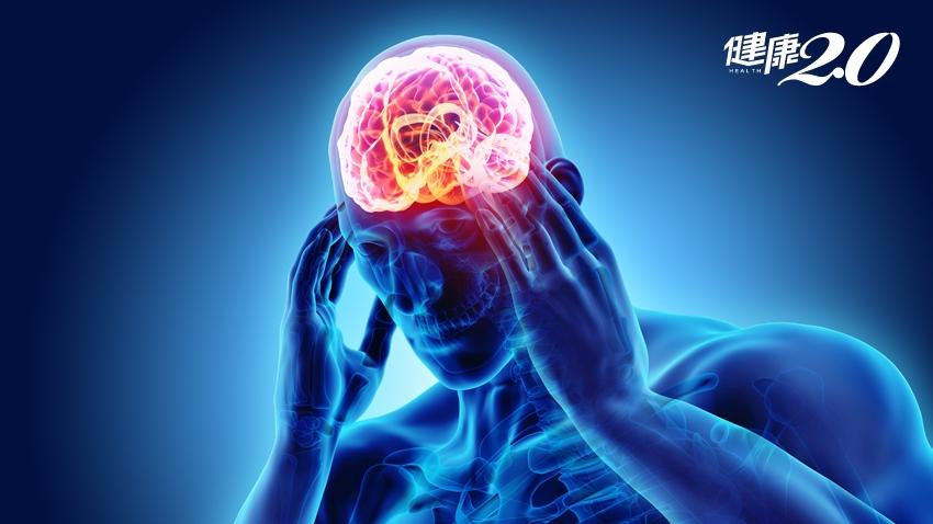 必知!5大腦血管疾病微創介入 遠離腦中風恐怖傷害