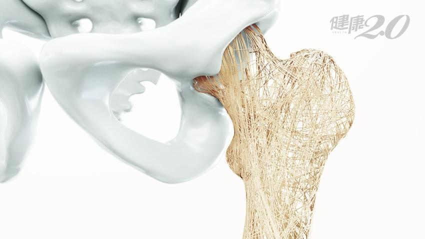 骨質疏鬆易骨折  醫師提飲食5字訣強筋健骨