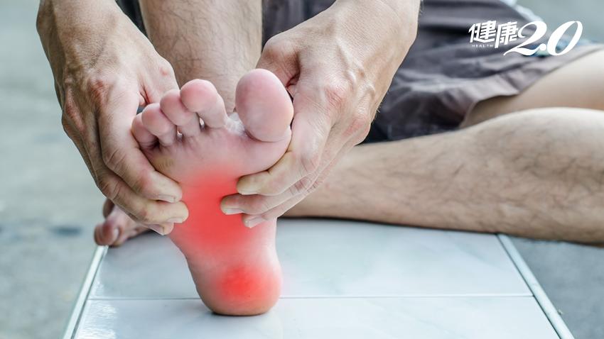 足底痛=足底筋膜炎?醫師解析3種常見病症