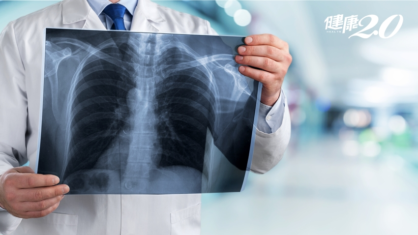 肺有陰影是肺癌?胸腔科醫師「預防、篩檢、治療」全解析