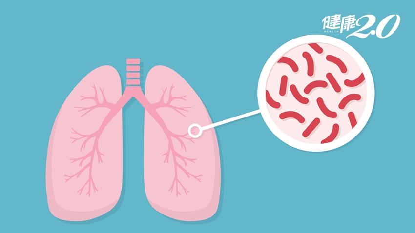 糖友、腎友慎防肺結核!胸部X光定期檢查、咳嗽胸悶要留心