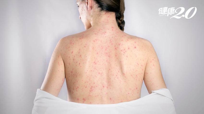 德國麻疹群聚感染!30多歲女性結膜炎、鼻炎、關節痛就醫確診