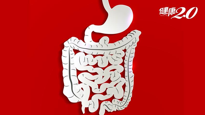 糞便潛血陰性,就不用做大腸鏡?「無痛」腸胃鏡真的不痛?台大醫解惑