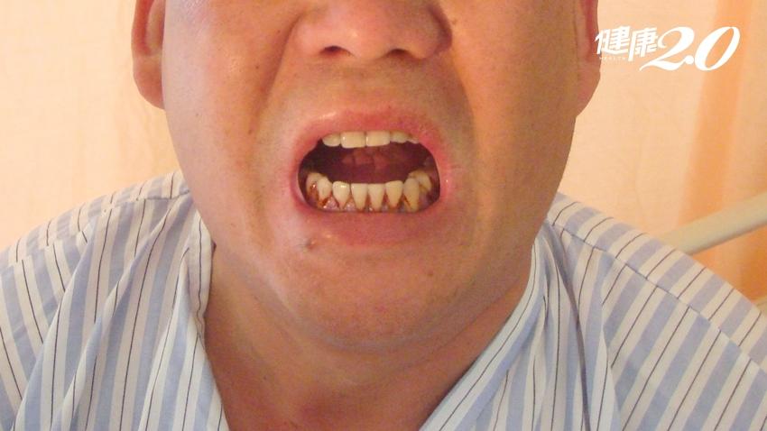 嗜吃檳榔導致口腔病變、連吃飯都有問題 跨科團隊合力再造自信人生