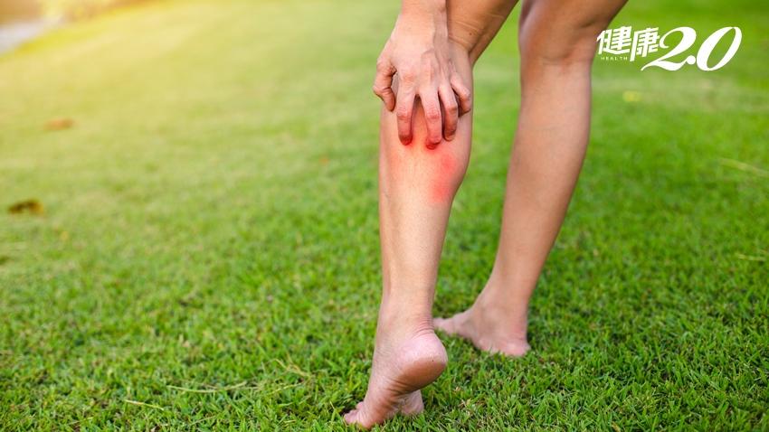 太恐怖!蚊子叮一口險截肢 3症狀小心周邊血管阻塞