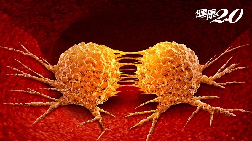 斷食餓死癌細胞?癌症權威告訴你萬萬不可的3大理由