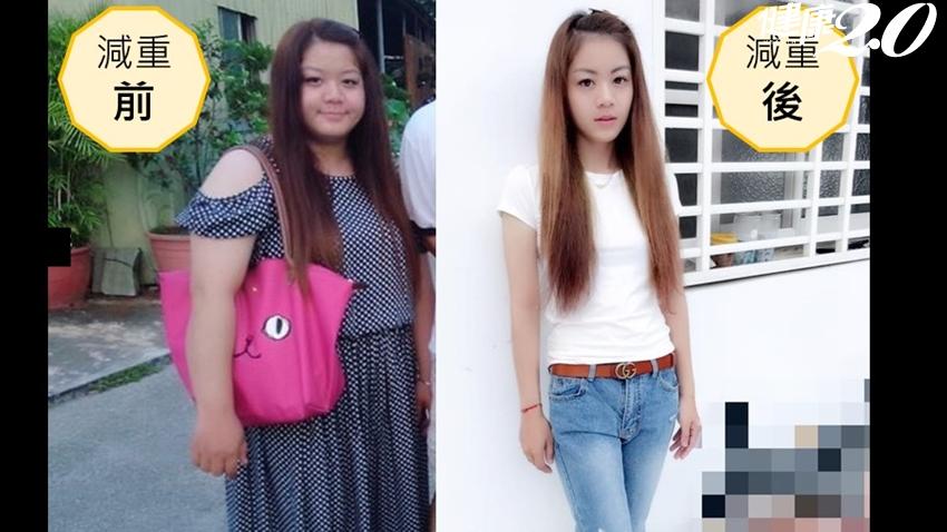 多囊性卵巢患者,半年瘦了52公斤!醫師用「這招」幫她減重