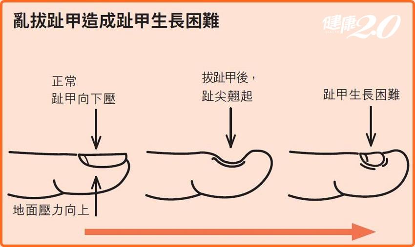 甲溝炎拔掉趾甲就會痊癒了?只要學會「這個」從此與凍甲絕緣