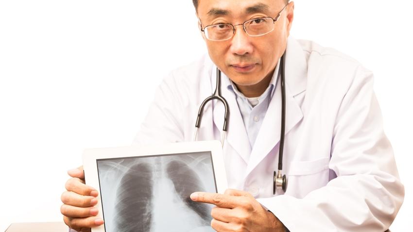 一家四口都得肺癌!有這些症狀要小心