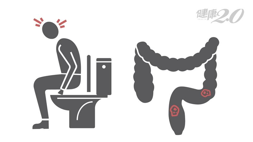 發現血便以為痔瘡發作,竟是直腸癌第3期!一個月療程讓腫瘤消失了