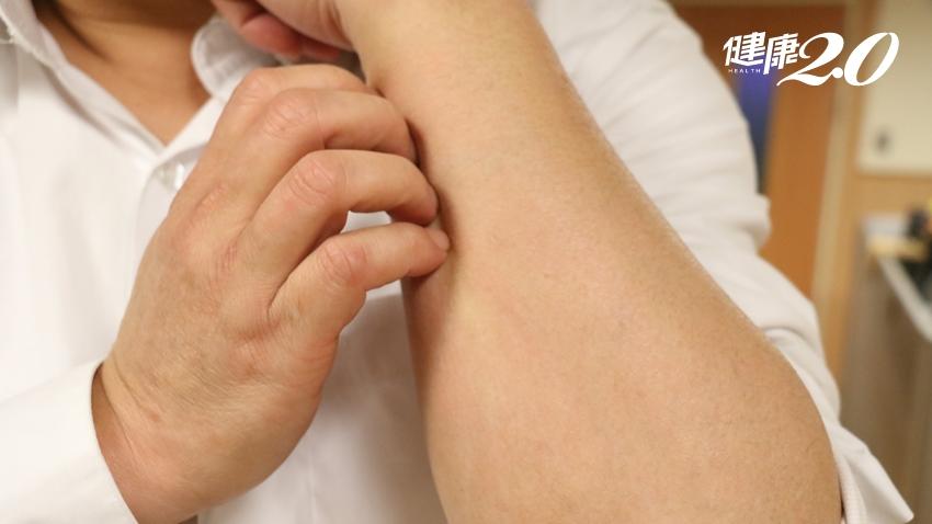 老翁全身癢、抓到流血…以為是皮膚病,沒想到竟是癌症作祟!