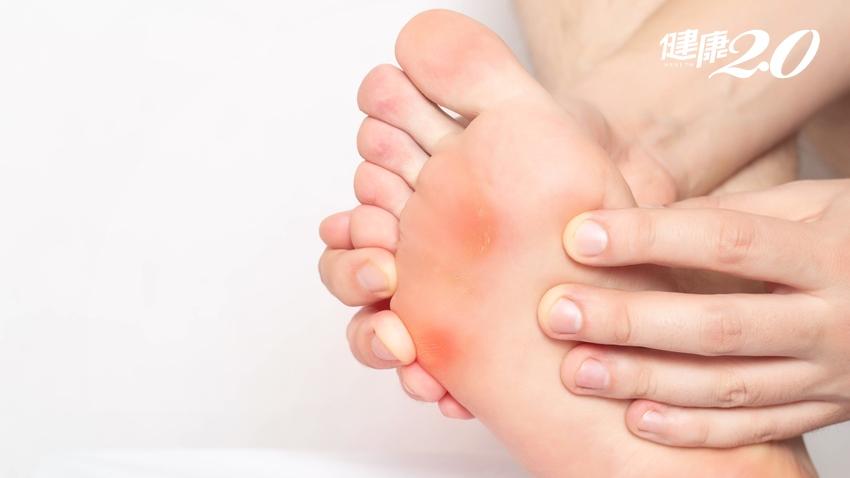 腳底板好痛!專家教你分辨長「疣」、「雞眼」還是「蹠痛」?