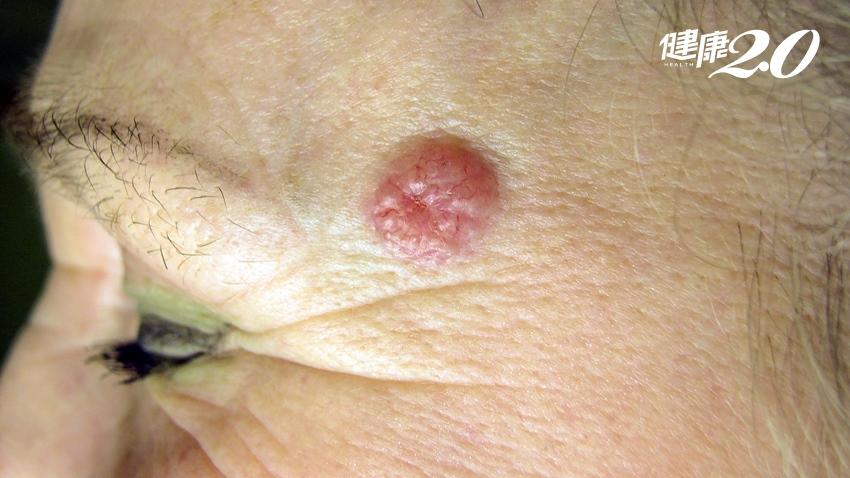 大陽穴凸起≠青春痘 頭皮腫瘤難發現 超過 2周未消或有變化 快檢查