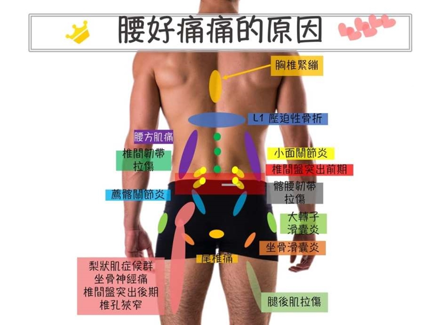 腰痛從何而來?原因多到難以想像,3面向有效辨別