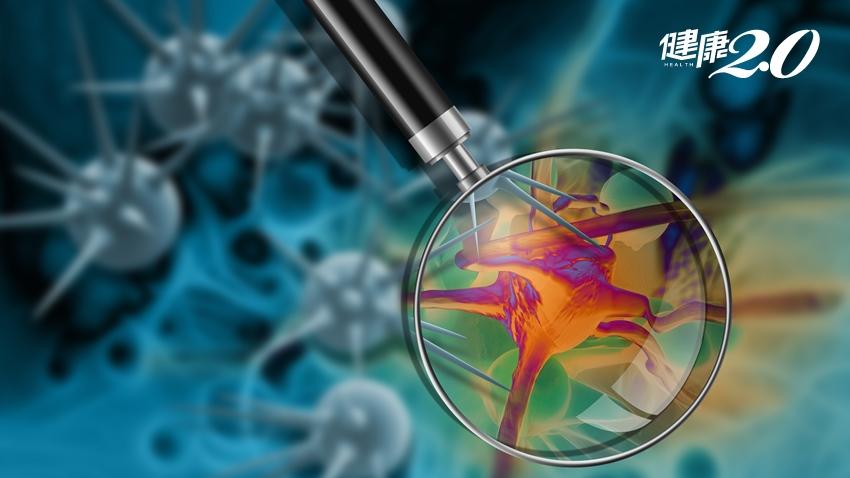 切片或手術會加速癌細胞擴散?癌病專家2個觀點說明