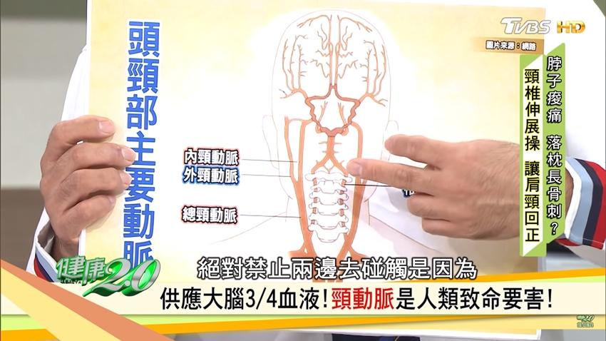 擺脫肩頸痠痛 學「開瓶器」運動扳正頸椎