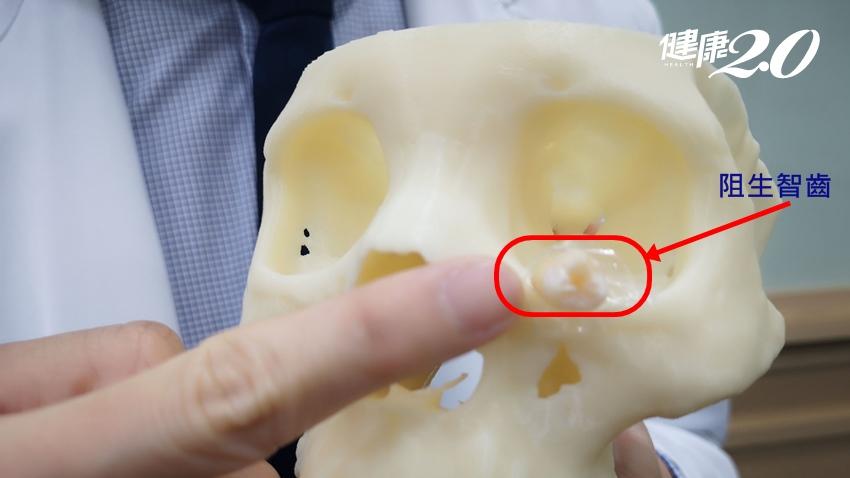 高三女顏面蜂窩性組織炎,竟是眼眶下長智齒!