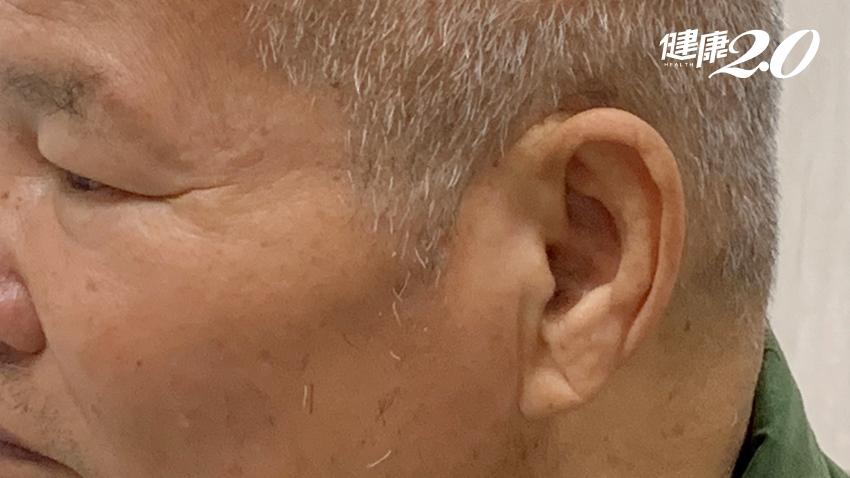 鏡子拿起來,耳垂有皺紋要小「心」 尤其走路時有2種症狀快檢查