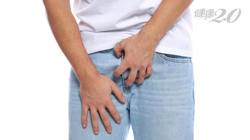 包皮反覆發炎,需要割嗎?泌尿科醫師:先管好「這數字」!