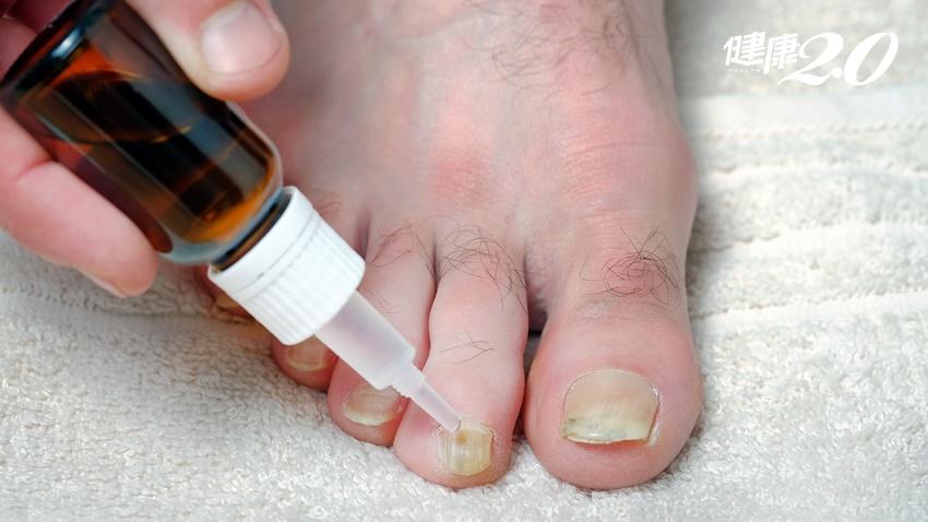 終於贏了灰指甲!皮膚科醫曝「認真擦藥卻治不好」的背後原因
