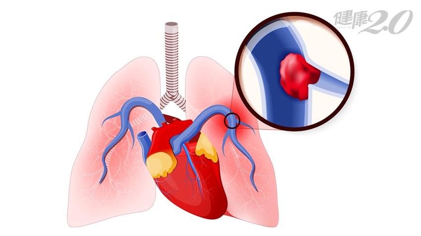 易被誤診的高危險疾病!婦女不明原因氣喘、胸悶 竟是「肺栓塞」