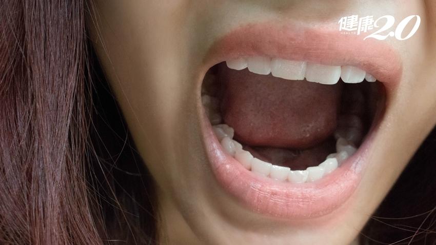 口臭不只是火氣大,也暗示隱藏疾病!5個好習慣防口臭
