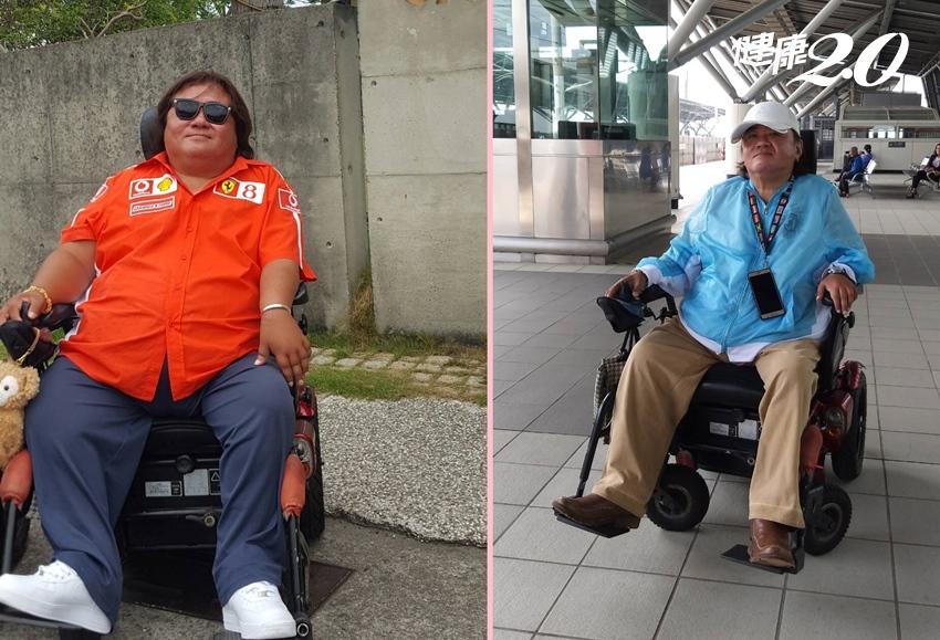 輪椅人生讓他體重失控!新手術甩肉56公斤,糖尿病、脂肪肝都不見了