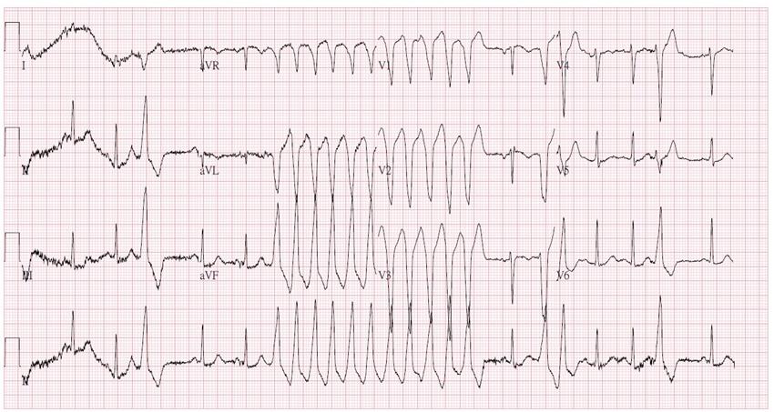 「這種心律不整」容易忽略、致命性卻最高!心跳大於120快就醫