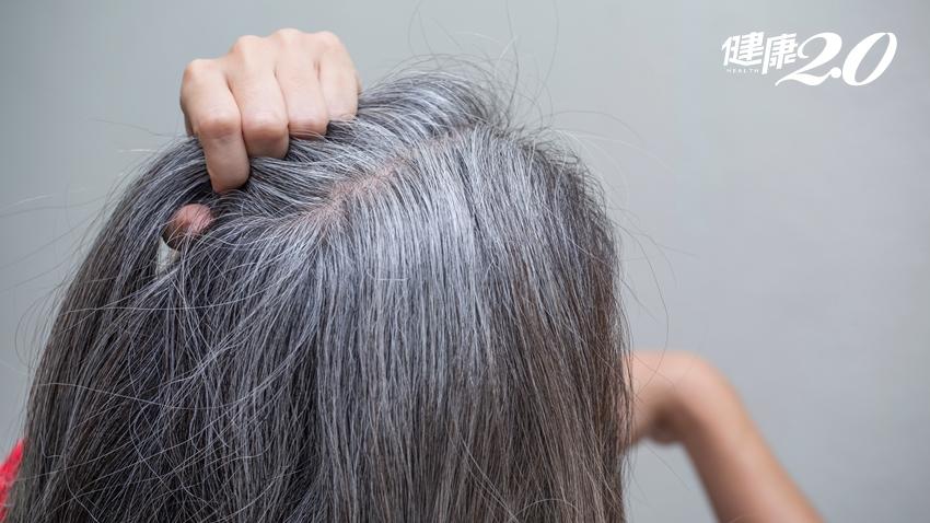5種白髮狀態有玄機!50歲後「黑白各半」屬正常老化