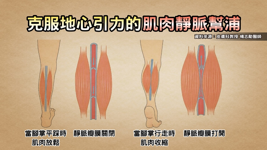 小看靜脈曲張會要人命!三招強化腿部肌肉,快學起來