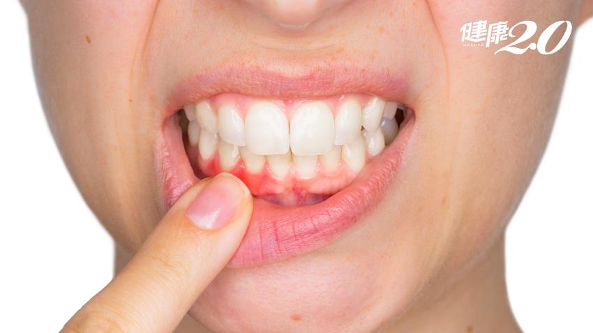 「牙齒浮浮的」就是身體慢性發炎!體內不滅火 4重大疾病找上你