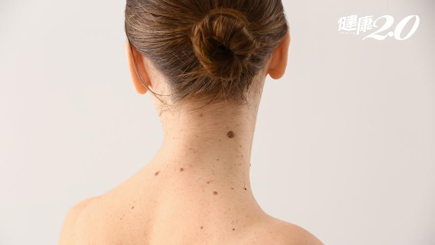 30年的「痣」竟成皮膚癌 痣變癌的7大變化要警覺