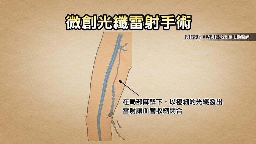 減輕靜脈曲張症狀,「這些食物」可促進血液循環、也有幫助