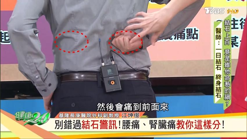 背後隱隱作痛,是結石還是腰痠背痛?看位置就知道