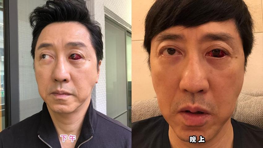 庾澄慶眼白爆血管,好可怕!中西醫教你快速消血塊、保養眼睛