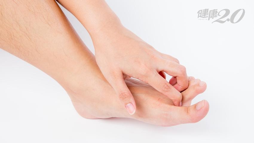 優碘可以治香港腳?除臭襪、足粉能預防香港腳?皮膚科醫師完整解答