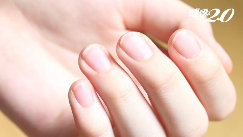 指甲斷裂、有紋路、蒼白?一張表教你 該補什麼營養