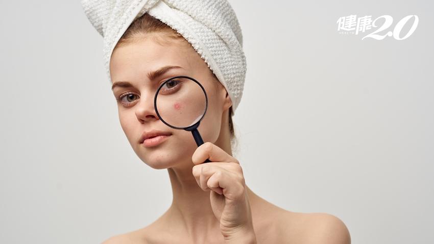 牙膏涼涼的消除青春痘有效?皮膚科醫:小心併發症