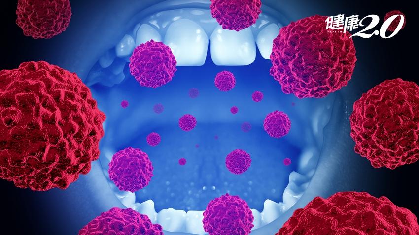 嚼檳榔「牙齦出血」竟是口腔癌第4期!醫師:這3種習慣機率更高