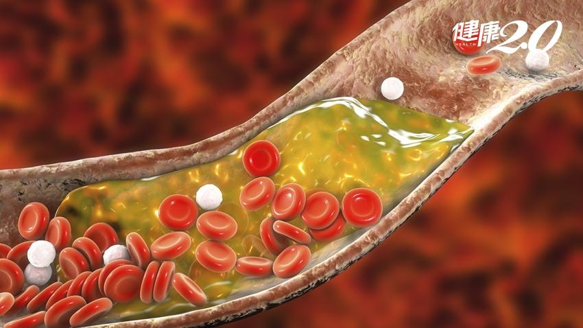 健檢膽固醇超標很危險?教你算「血管硬化指數」預測風險