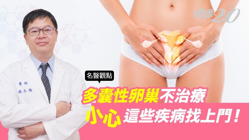 有「多囊性卵巢」怎麼辦?不治療,小心4大疾病癌症找上你