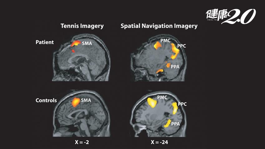 研究:透過腦部造影 可望與植物人對話