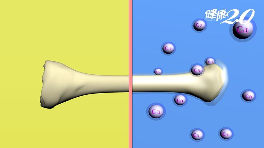 「骨鬆」補鈣就好不用吃藥?骨科醫師破解「5大錯誤」補鈣迷思