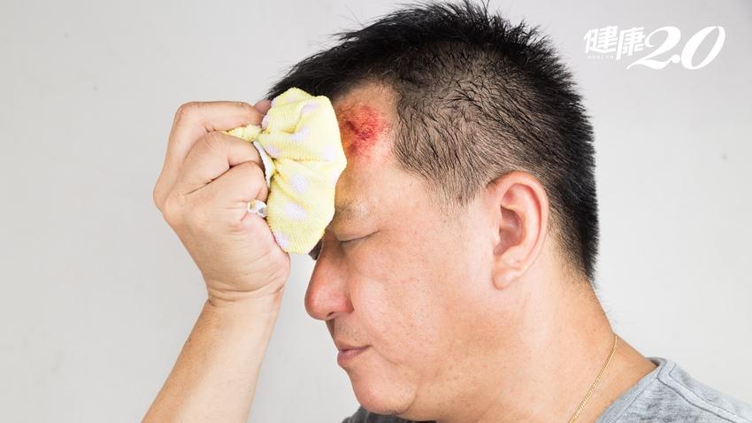 額頭撞傷竟變肉瘤?4部位最易長皮下腫瘤 教你不留疤的處理原則
